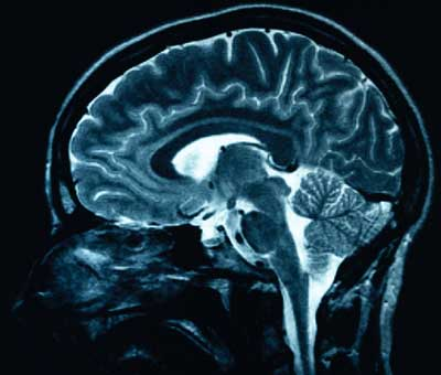 An image of the brain