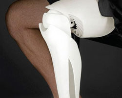 This prosthetic leg is one of the many things that can now be manufactured by 3D printers.